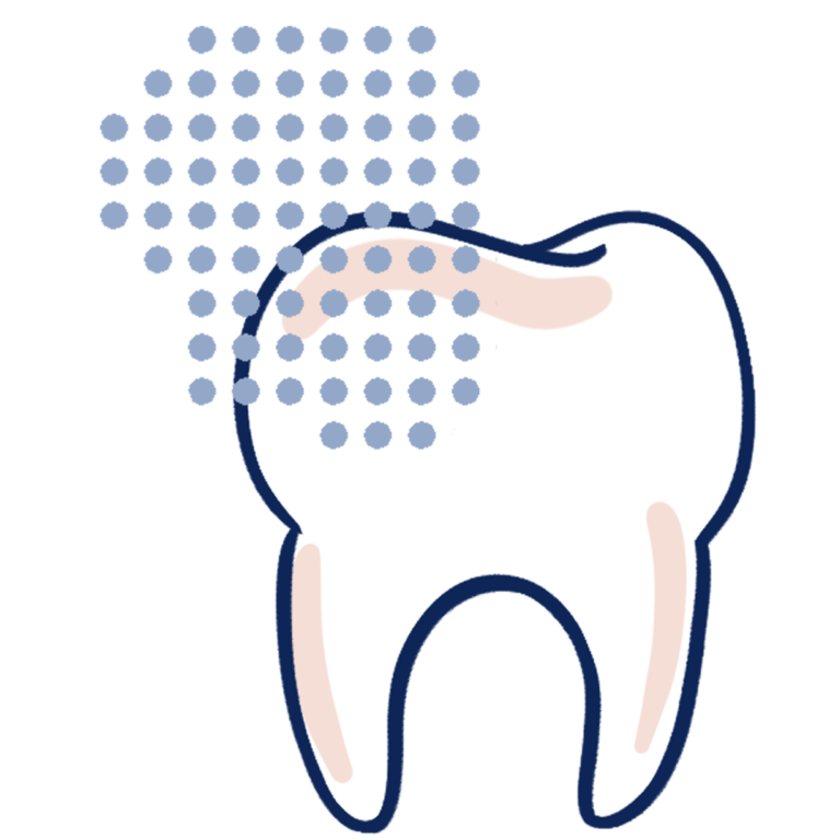 fluoride application on tooth